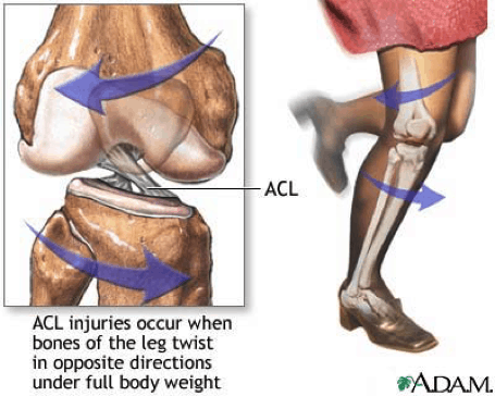 ACL Physiotherapy Penrith