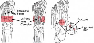 anatomy midfoot physiotherapy