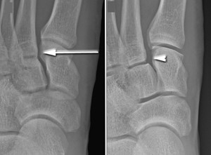 Lisfranc Physiotherapy
