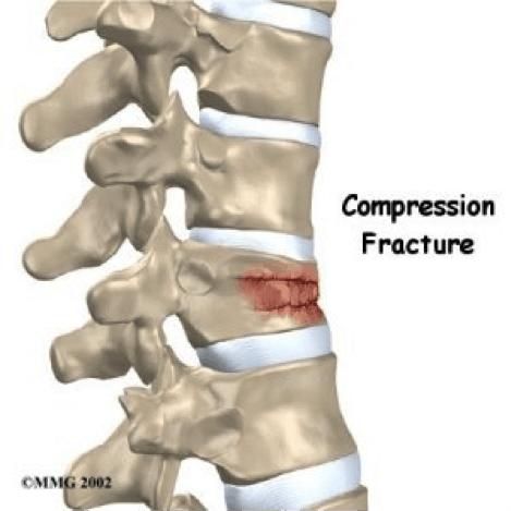 Frail bones Osteoporosis