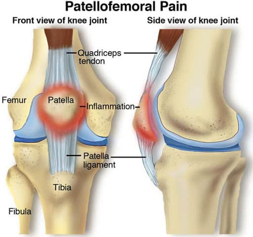 Physio knee pain