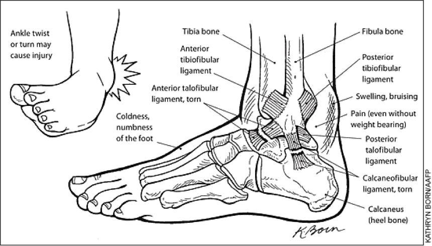 Ankle anatomy and ligament injury