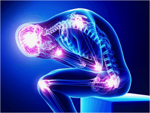 Chronic Pain and Physiotherapy