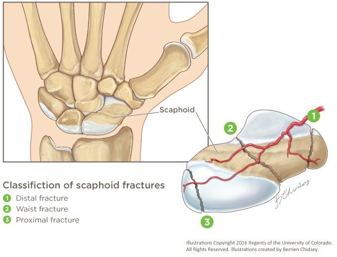scaphoid fracture physiotherapy wrist pain