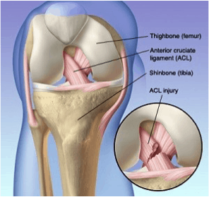 Physio ACL