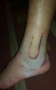 Soft Tissue Injury - Management