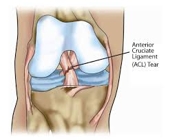 softball knee injury