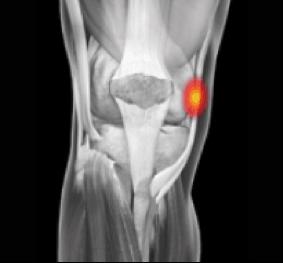 medial knee swimming injury
