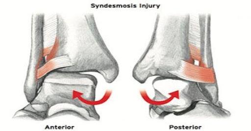 Syndesmosis Injury