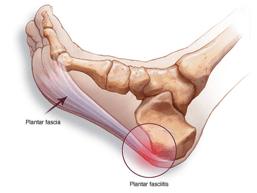 tendon pain