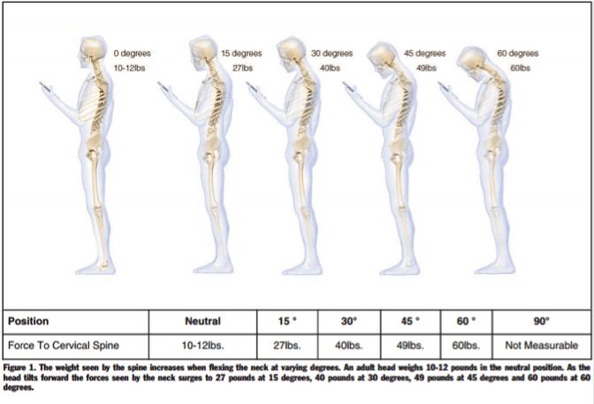 text neck pain posture skeleton
